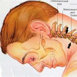 Межпозвонковая грыжа шейного отдела методы лечения