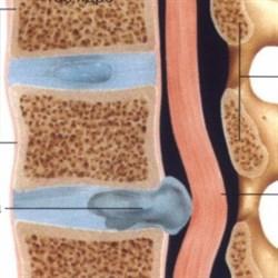 Массаж при грыже шейного отдела позвоночника
