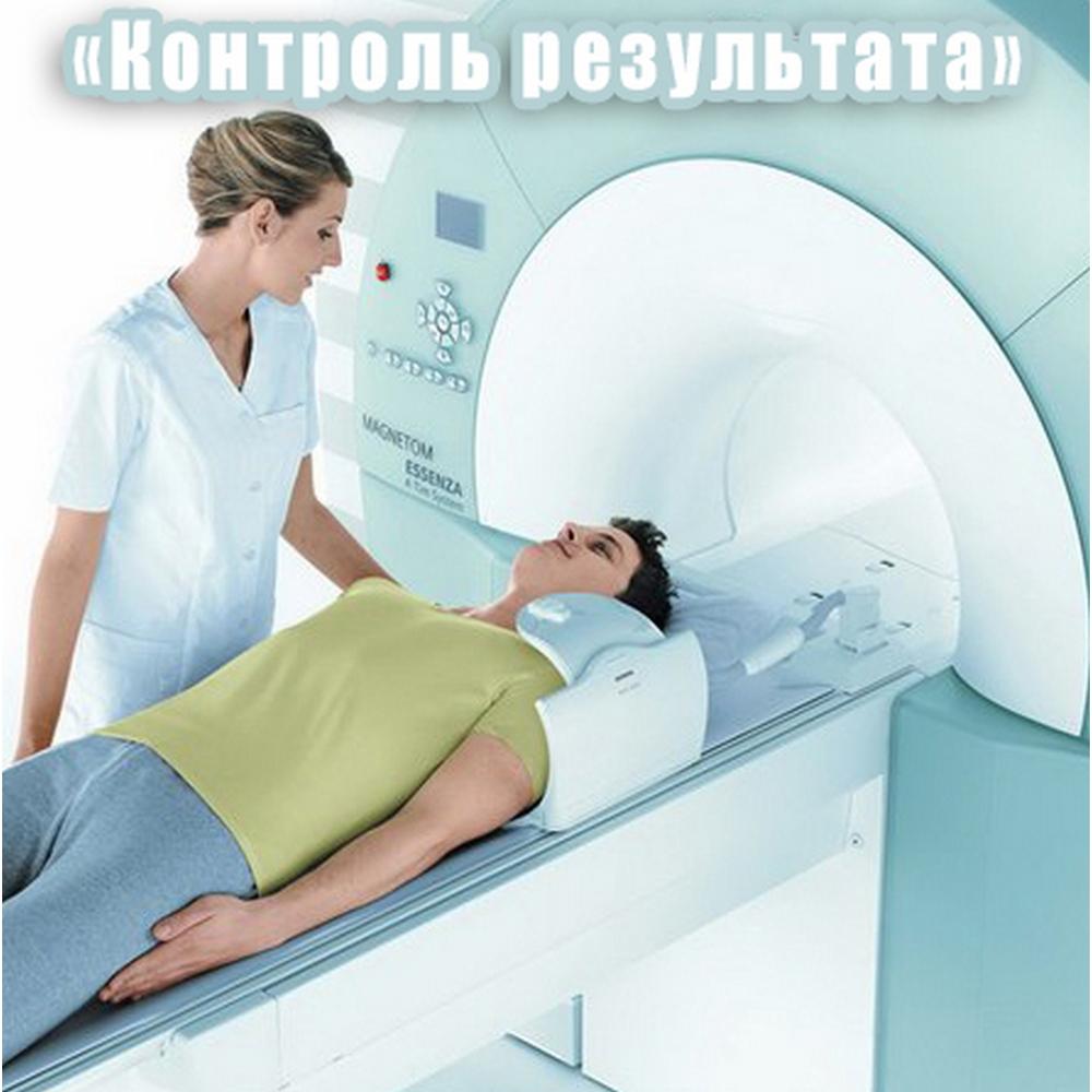 БИФАР МРТ по программе Контроль результата (1 часть)