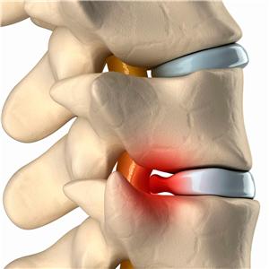 Аппарат для лечения межпозвоночной грыжи без операции thumbnail