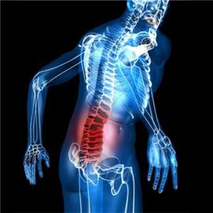 Физиотерапия и лфк при поясничном остеохондрозе