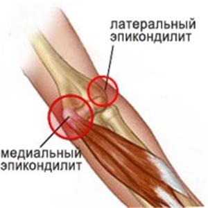 Вводить в сустав небулайз лечебная гимнастика для коленного сустава при болях
